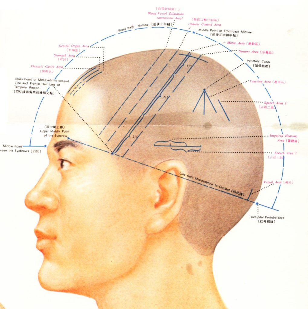 Scalp Acupuncture 1